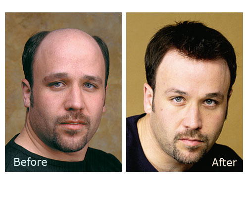Pleasant Nonsurgical Hair Replacement Cheveux Hair Clinic Hairstyles For Men Maxibearus